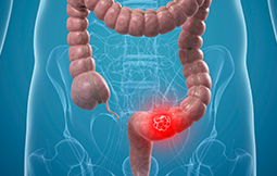 Colon Cancer Treatment