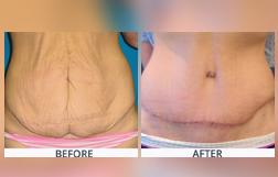 Abdominoplasty Treatment