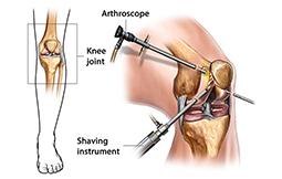 Arthroscopy Surgery