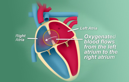 Atrial Septal Defect (ASD) Surgery