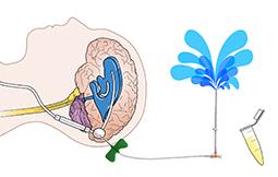 Cerebrospinal Fluid Shunt