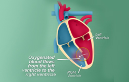 Ventricular Septal Defect (VSD) Surgery