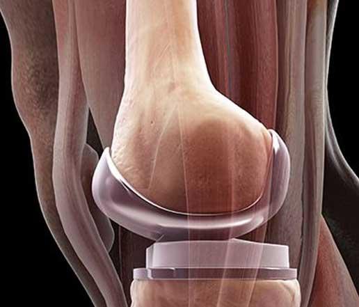 Top 5 Knee Surgeons in India