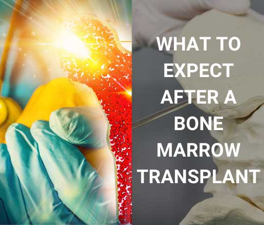 What is Bone marrow transplant and what to expect after it ?