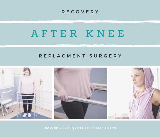 Recovery After Knee Replacement Surgery.